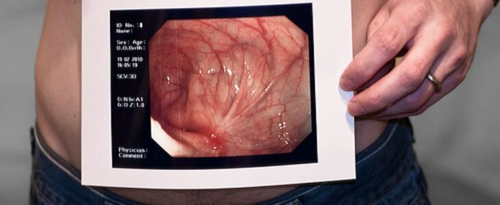A belly man with a picture of Chrons and Colitis