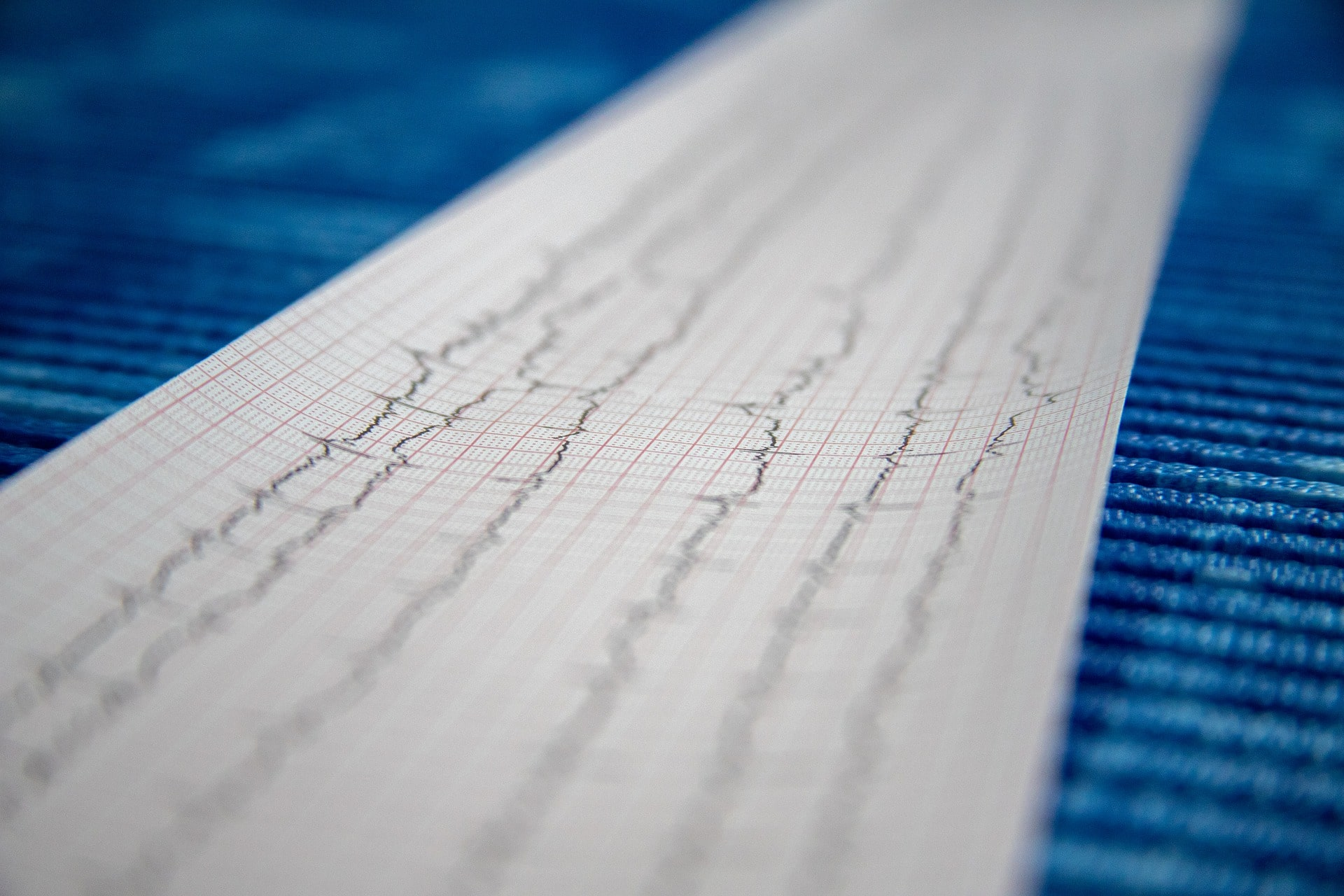 An Image of Electrocardiography