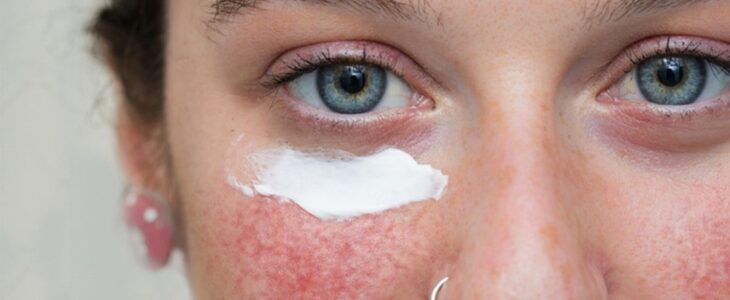 A woman's face has blush in cheeks and cream below her left eye.