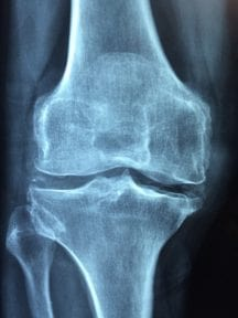An image of x-ray knee result.